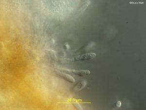 Conidia on conidiophores