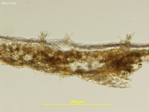 Side view of conidiophores emerging from leaf tissue