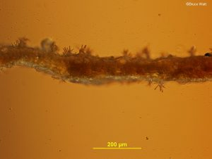 Side view of conidiophores emerging from leaf tissuef