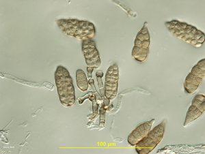 Conidia and conidiophores