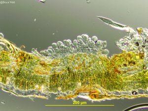 Vertical section of uredinium
