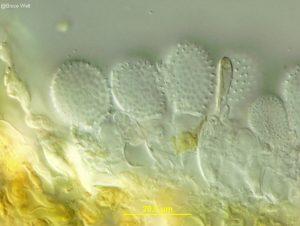 Surficial view of urediniospores on stalks