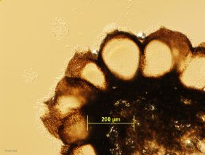 Pycnidia, vertical section