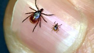 Adult Female Deer tick and Nymph Dear tick