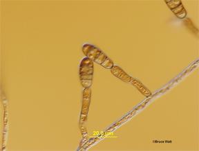 Figure 2. Embellisia allii, casual agent of Embellisia Skin Blotch of Garlic