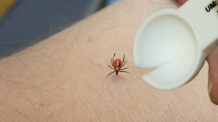 Placing the tick spoon's notch on the skin near the tick.